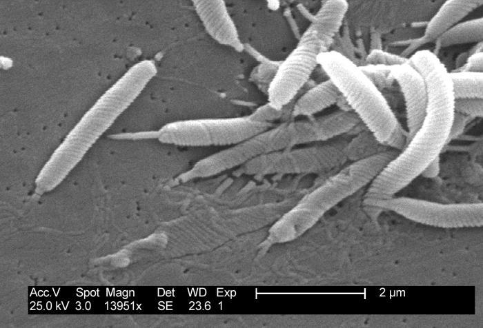 Immagine al microscopio elettronico a scansione (SEM) di H.pylori