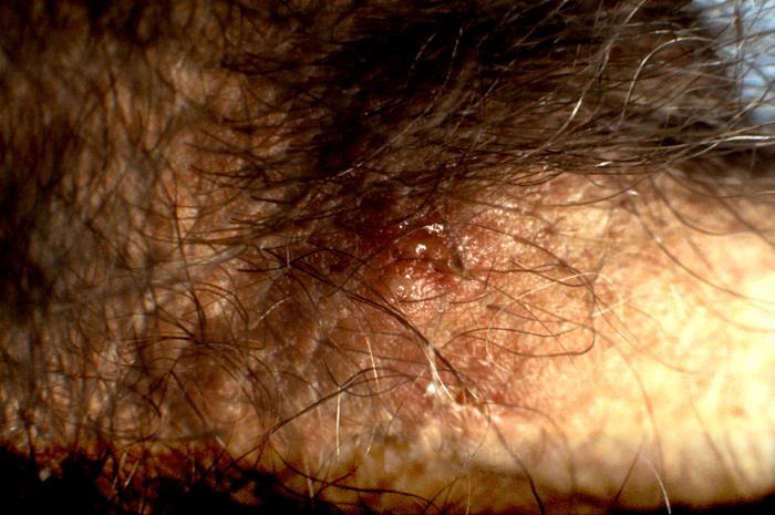 Genitalis was ist herpes Herpes genitalis: