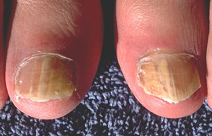Toenail Falling Off. Toenail infection