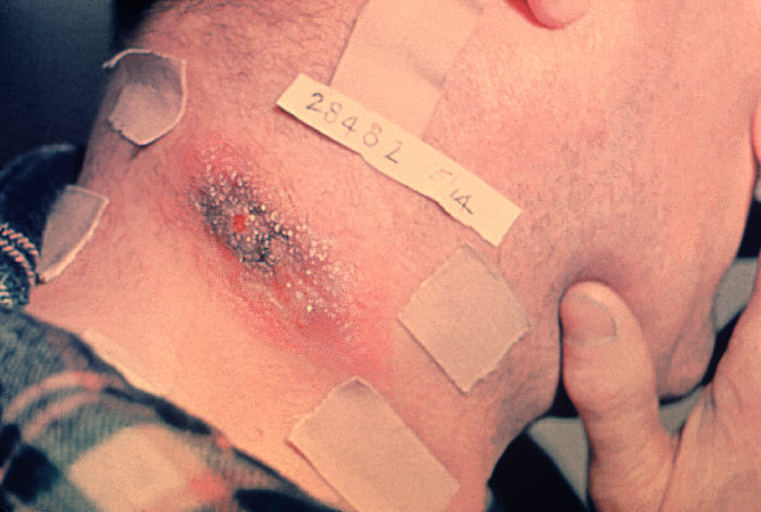 Anthrax lesion on the neck.