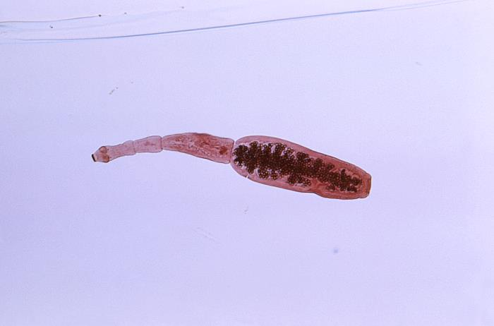 A photo of a specimen of Echinococcus granulosus found in a dog.