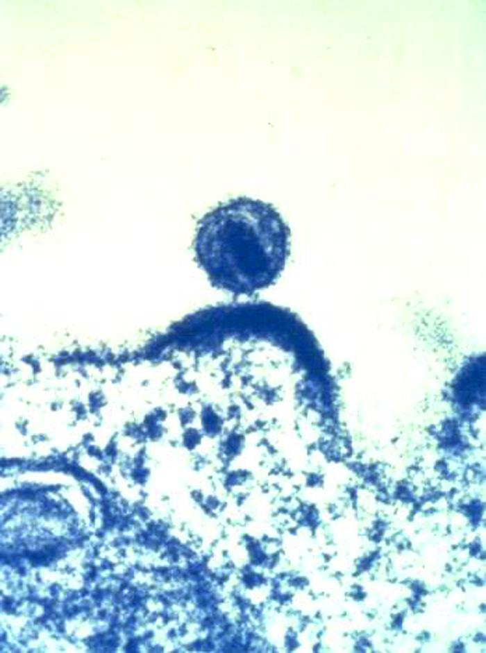 HIV particle budding from a cell.