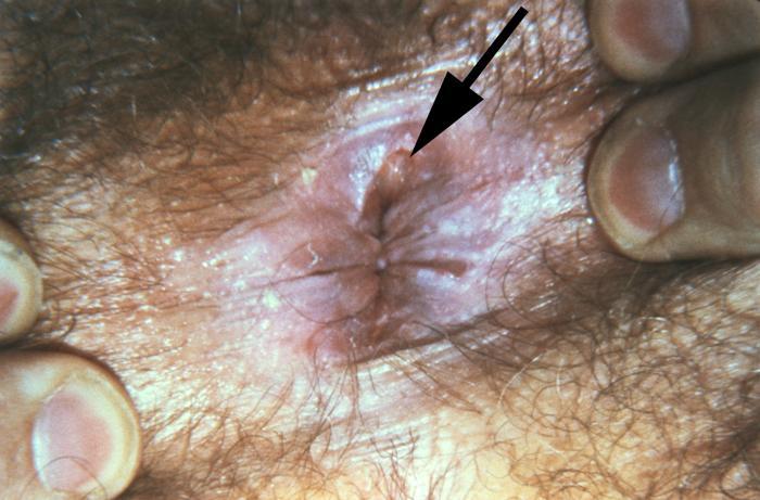 Internal deepthroat cum swallow