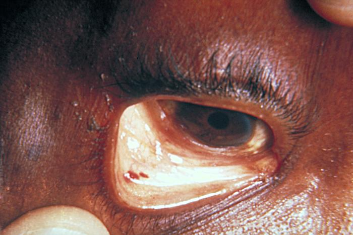 Staph Infection - Eye
