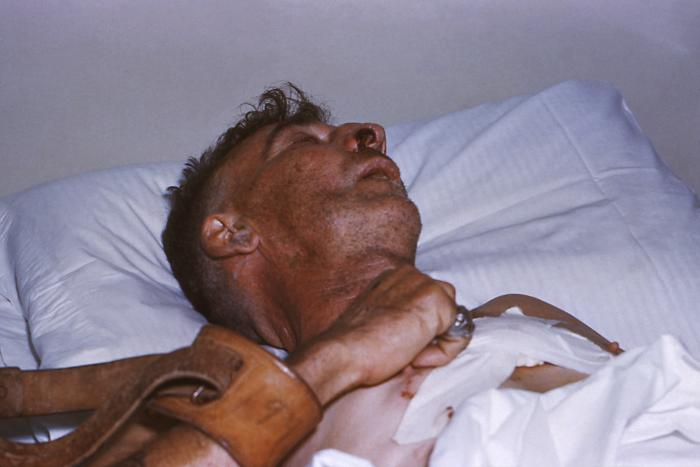 This was a hospitalized human rabies victim who was restrained while bedridden.