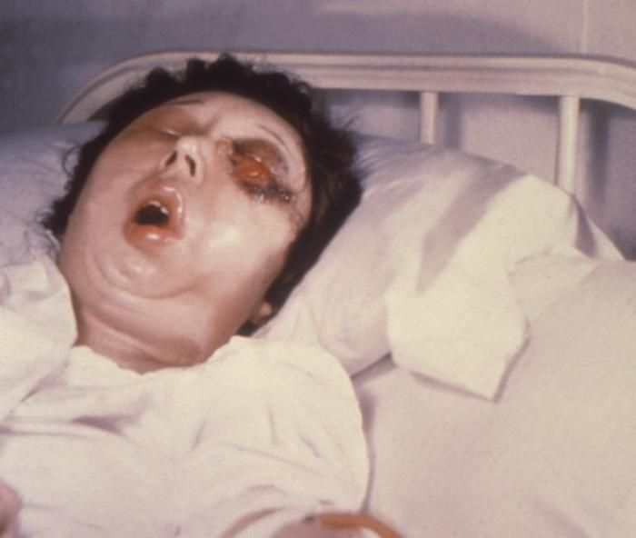 This female patient is shown here on the 5th day of a Bacillus anthracis infection involving her left eye.